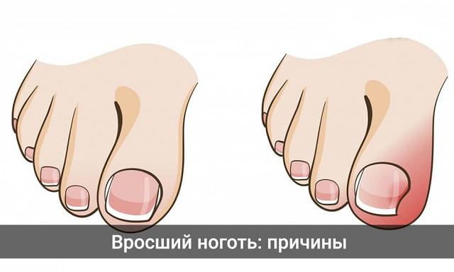 1475742072vrosshiy-nogot-prichiny